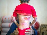 مرگ ۱۵ کودک ایرانی به دلیل تحریمهای آمریکا