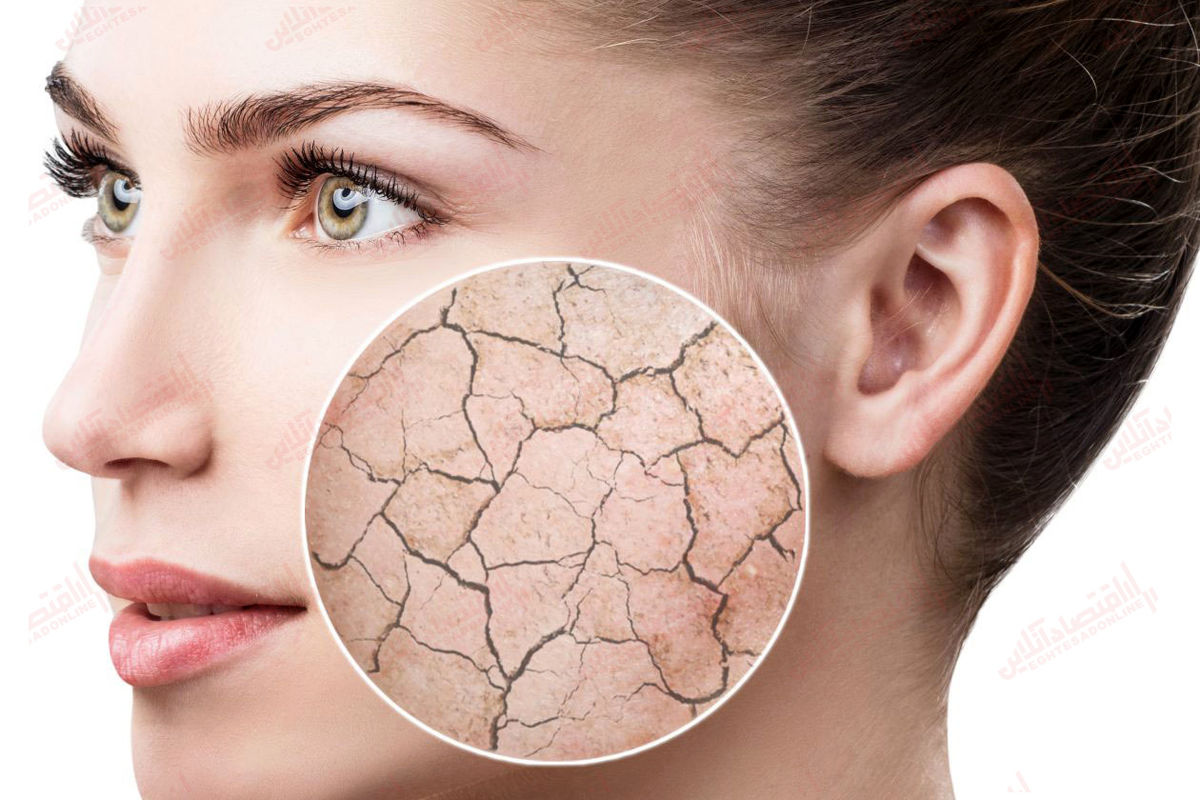۳ دستورالعمل مخصوص برای پوست خشک