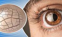 8درمان طبیعی خشکی چشم