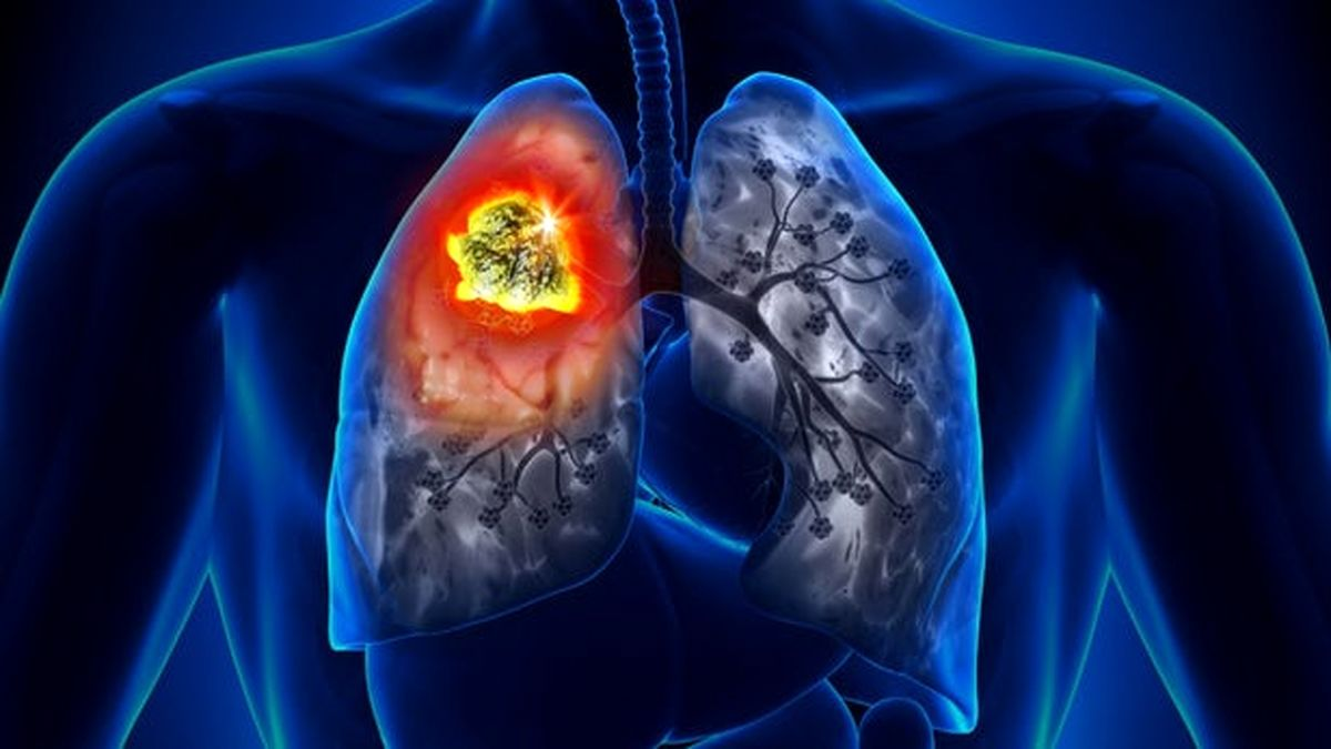 تفاوت ریه های فرد واکسینه شده و فرد واکسینه نشده