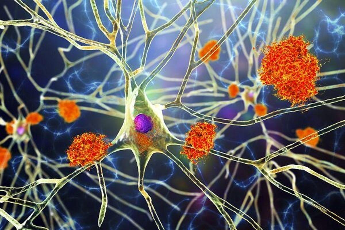 درمان آلزایمر با نور و اکسیژن