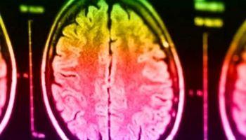 کشف اختلالات خاص مغزی در سر افراد قاتل! +عکس