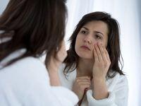 افزایش سن چه بلایی سر پوست میآورد؟