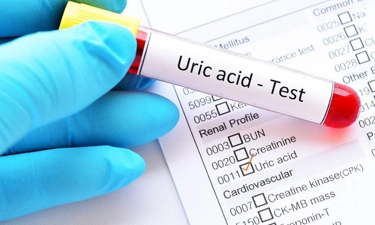 اسید اوریک و ۶روش برای کاهش آن