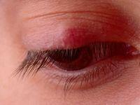«استرس و بیخوابی» عامل ایجاد گلمژه چشم