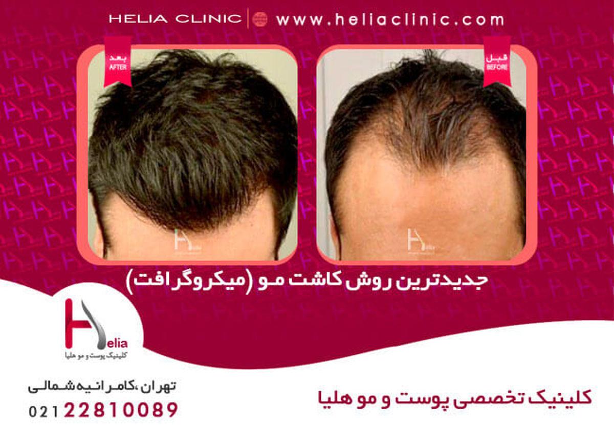 مقایسه روش های کاشت مو و ابرو در کلینیک هلیا